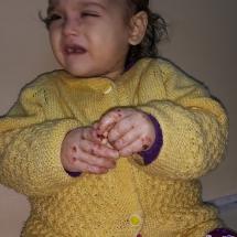 Sümeyye-Taban-3-yaşında-bir-kelebek-Diyarbakırın-Ergani-ilçesinde-yaşıyor-derneğimiz-tarafından-yarabakım-malzemeleri-karşılanıyor.